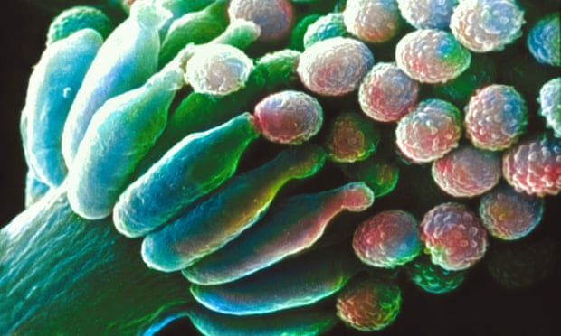 Aspergillus fumigatus, one of the most common aspergillus species to cause disease in individuals with an immunodeficiency. Photograph: Alamy