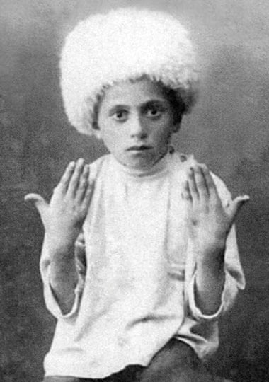 A 10 year-old Armenian orphan named Mushegh displays wounds.