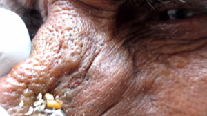 A screenshot of Dr. Yadav extracting blackheads
