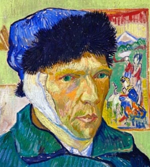 A detail from Vincent van Gogh's Self-portrait with Bandaged Ear, 1889. The artist expressed his frustration at the impact his mental illness had on his work.