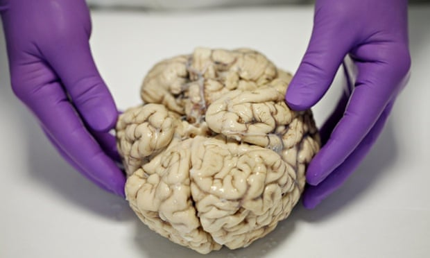 A brain ready for dissection