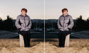 An image and a flipped image of Sharon, who has a rare brain condition