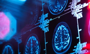 Researchers said they would continue to follow participants to explore the link between lifestyle and dementia risk.