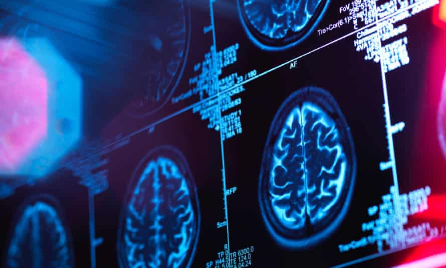 It was hoped that when taken alongside existing drugs idalopirdine might improve symptoms in those with Alzheimer's.
