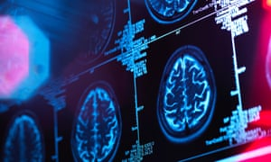 Human brain scan in a neurology clinic<br>G17NAN Human brain scan in a neurology clinic
