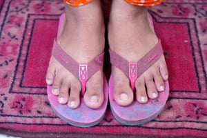 The feet of a textile worker in Bangladesh