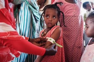 Gedaref, SudanA four-year-old Ethiopian girl who fled the Tigray conflict as a refugee is measured at a malnutrition centre at Village Eight transit centre near the Ethiopian border