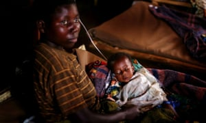 A woman sits with her malnourished child in a clinic in Kayna, Democratic Republic of Congo in 2006