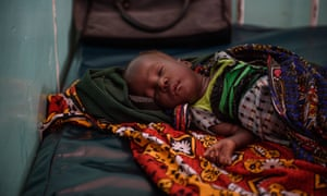 Gasping for breath: pneumonia's deadly toll among the hungry