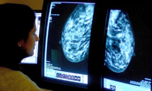 An NHS consultant analyses a mammogram.