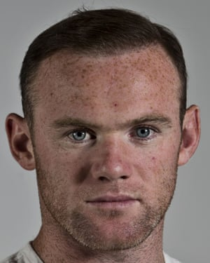 Restoration man: Wayne Rooney after his treatment.
