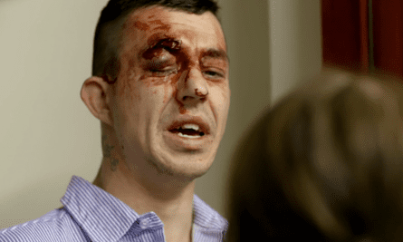 Tommy Calder with eye injury