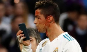 Real Madrid's Cristiano Ronaldo uses a mobile phone to check a wound in his face.