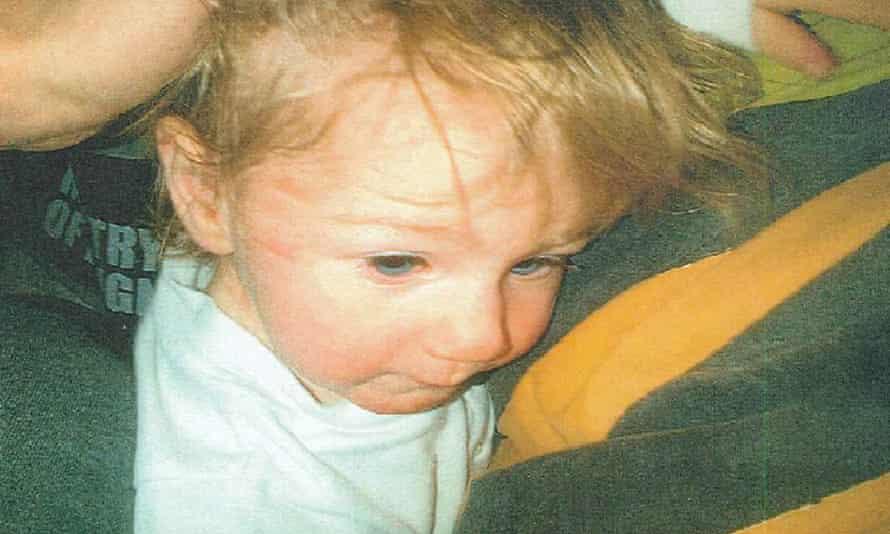 One of the photos taken of Ayeeshia Jane Smith before her death showing marks to her face and the underside of her chin which were shown to the jury during the trial.