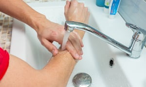 Running the burn under cold water helps to prevent further damage to the skin.