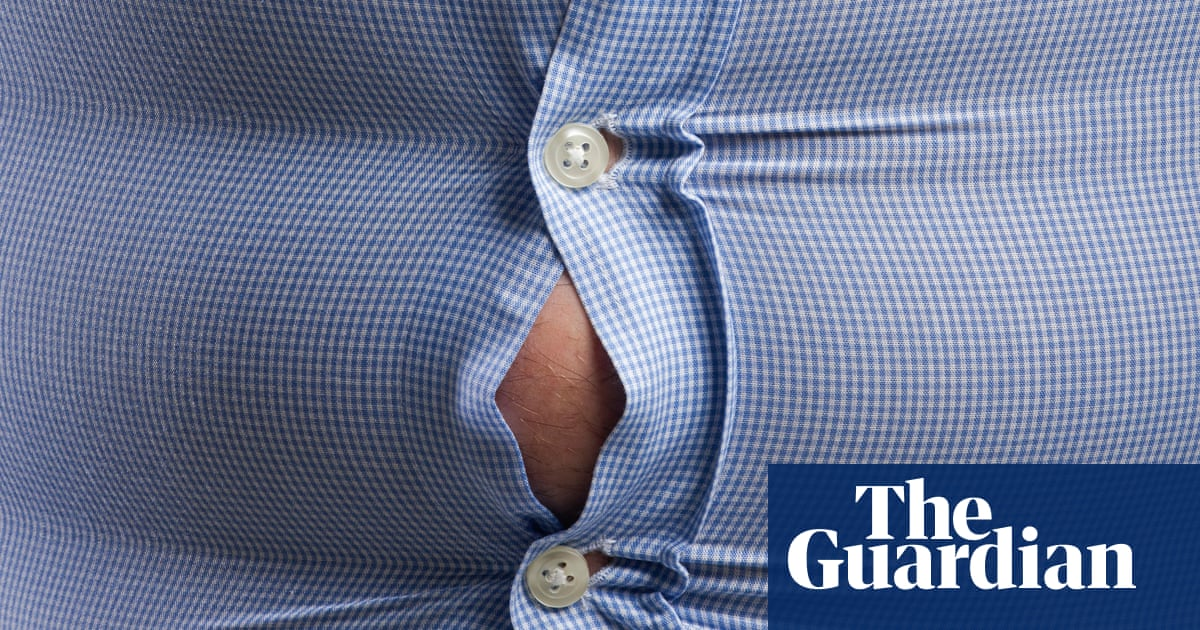 I lost 13 stone – now I know the truth about obesity | Society | The