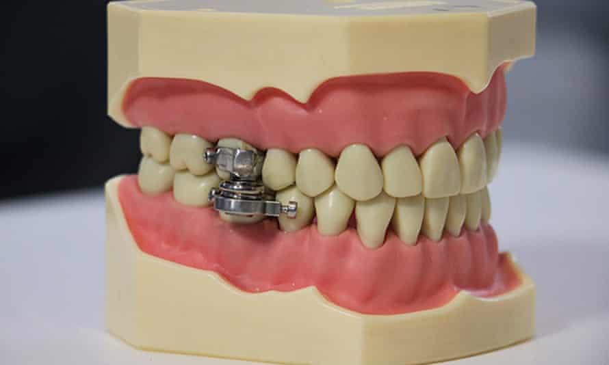 The DentalSlim Diet Control device
