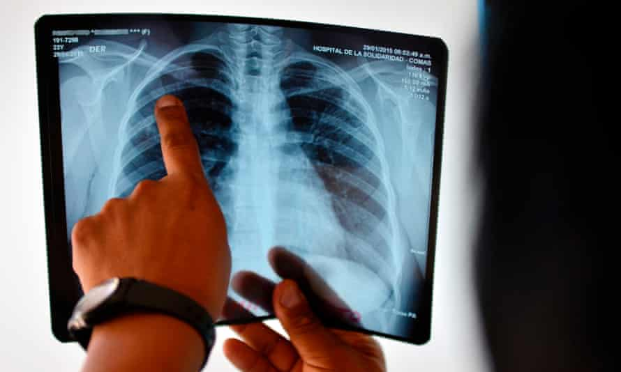TB kills more people every year than any other infectious disease, including Aids, says the report - an estimated 1.8 million people in 2015.