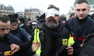 A gilets jaunes leader is led away after an eye injury