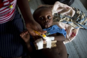 Cenelson Lundi, 13 months, a victim of cholera receives treatment at the state hospital