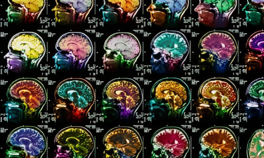 Coloured sagittal MRI scans of the human brain