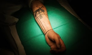 Cid Isbell's tattoo and surgical markings moments before his surgery begins.