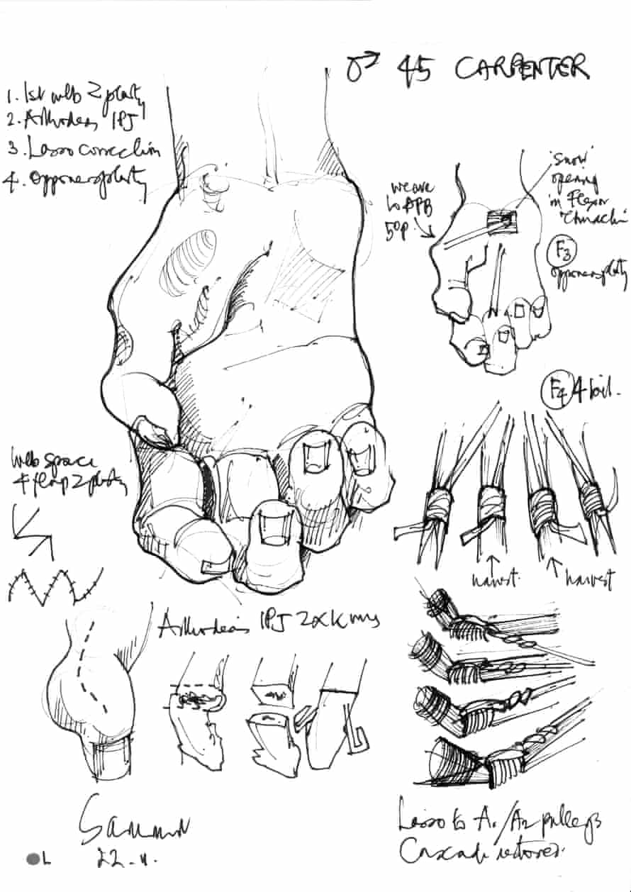 Surgery notes for a 45-year-old male carpenter needing Lasso correction and opponensplasty. Drawing by Donald Sammut, Working Hands charity.