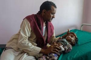 Abdo Sayid, four, is comforted by his uncle Yahya in the acute malnutrition ward in Al Sadaqah hospital in Aden