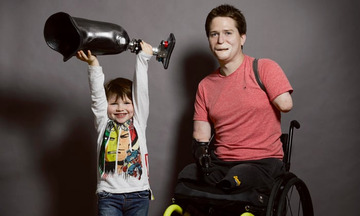 Alex Lewis: 'Losing my limbs made me realise what I had