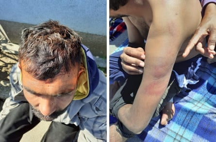 migrants spray painted by the Croatian police