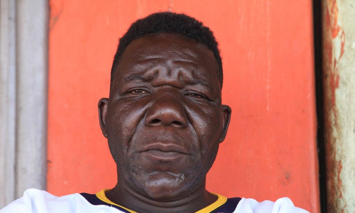 Zimbabwe's three-times Mr Ugly winner William Masvinu poses for a photo in Harare. Photograph: Tsvangirayi Mukwazhi/AP