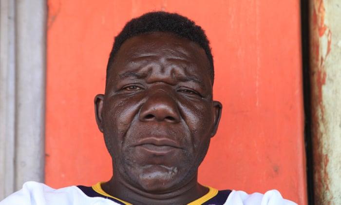 Uproar As Zimbabwe S Mister Ugly Winner Deemed Too Handsome World News The Guardian