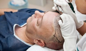 A hair transplant operation.