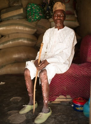 Simon Shauabi, who lives in Kudaru, lost his sight to river blindness 30 years ago