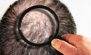 head of hair under magnifying glass