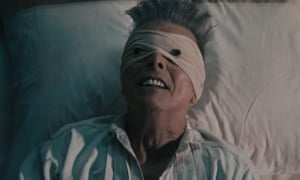 Dovid Bowie as Button Eyes in the Lazarus video