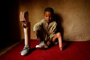 Mohammaed Mahdi, who lost his foot in a mine explosion in Kabul. He is one of the thousands of people injured or killed by landmines each year.