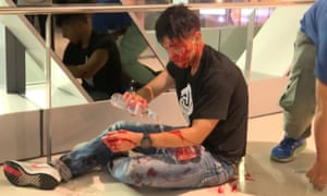 Journalist Ryan Lau Chun Kong tends to his wounds after he was attacked at Yuen Long mass transit station.