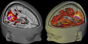 The brains of subjects lying awake with their eyes closed, under a placebo (L) and the drug LSD (R), visualised using functional MRI. Imperial College London-The Beckley Foundation/