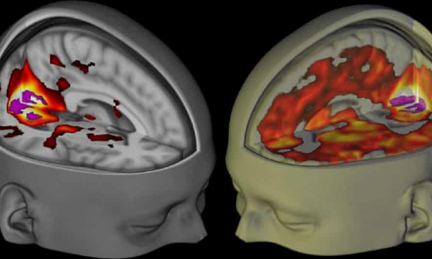 3D fMRI image of the brain