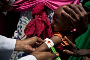 At the mobile clinic in Caynabo, a child is checked for signs of malnutrition