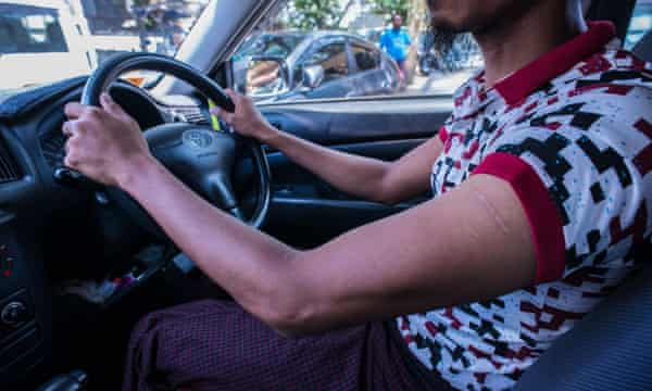 Myanmar Taxi driver Nanda Kyaw has scars on his left arm from a beating.