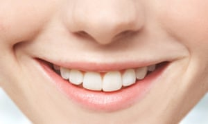 Half of 16- to 34-year-olds worry too much tea will stain their teeth.