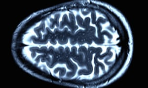 An MRI scan of a healthy brain. In Huntington's patients, a genetic mutation causes irreversible damage to the brain.