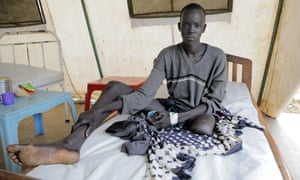 A young man in South Sudan had his left leg amputated after a severe infection caused by snakebite.