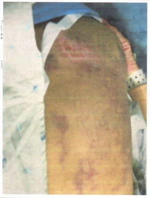 Image depicts what appears to be a detainee's leg injury. No further context was provided.