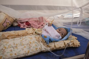 Four-month old Sara Nasser in Ataq general hospital