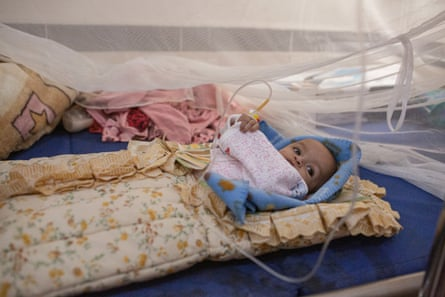 Sara Nasser, 4 months, who is suffering from a chest infection, in the paediatrics ward of Ataq General Hospital