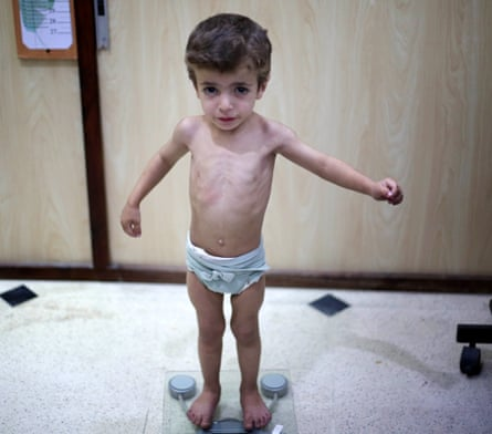 A Syrian toddler is weighed in a medical examination in eastern Ghouta, Damascus.