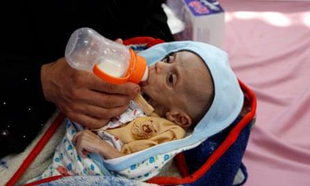 A Yemeni mother feeds her malnourished child